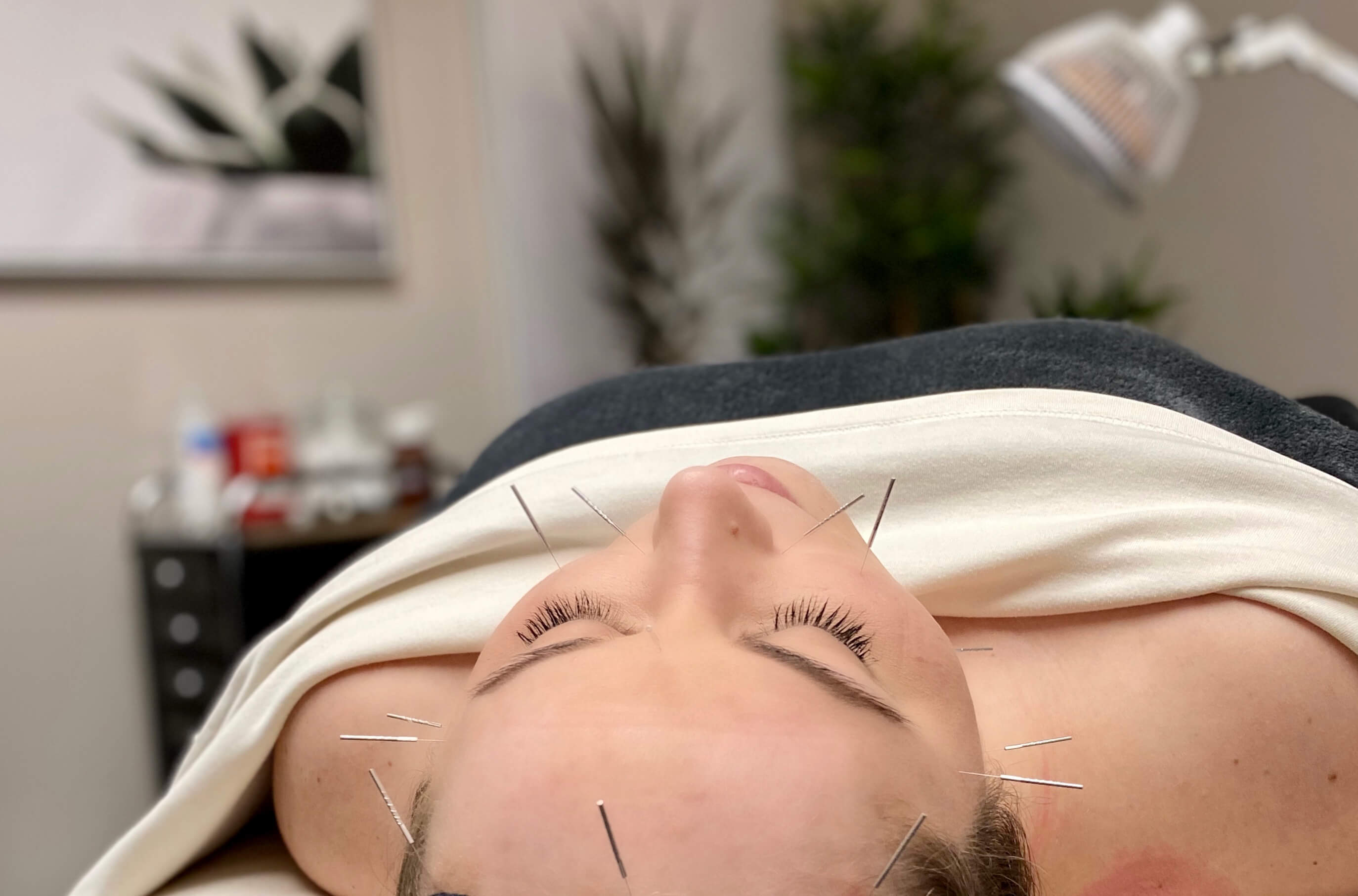 acupuncture therapy on the face