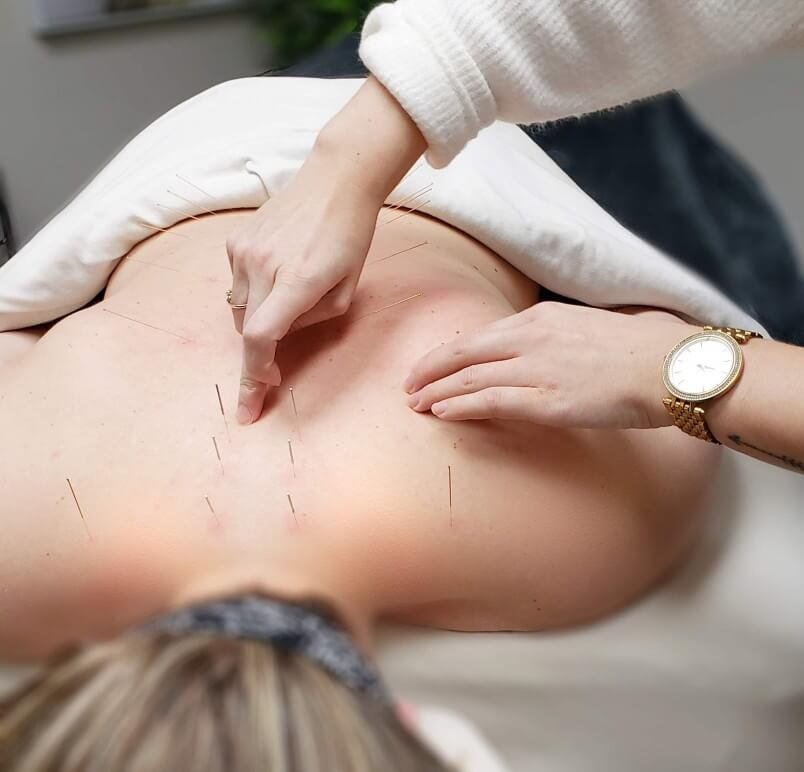 How Can You Use Acupuncture for Back Pain Treatment?